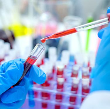 Blood Test at Home in Hyderabad - Blood Sample Collection from Home